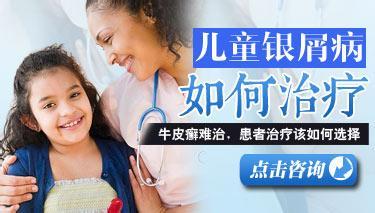 医院如何治疗儿童牛皮癣的