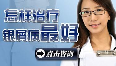 中老年牛皮癣疾病应该如何治疗